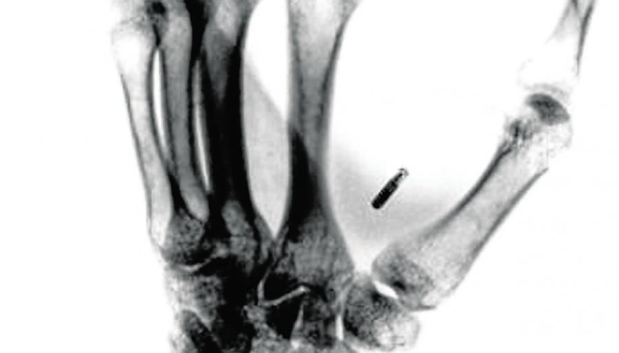Tecnología Tecnología Un chip autoimplantado en la mano permite convertirse en ciborg por 60 Euros