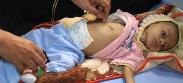 Internacional Internacional Miles de civiles en riesgo en la ciudad yemení de Al Hudayda