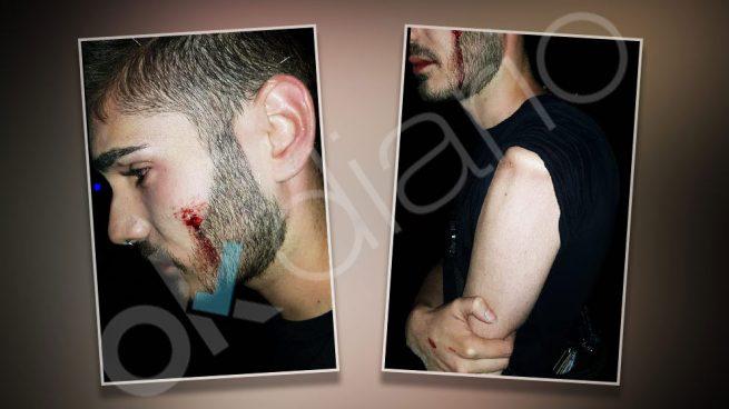 Gays Gays El portero de una discoteca de Alcorcón da una paliza a un chico por besarse con su novio en el local